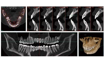 歯科用CTを完備しています